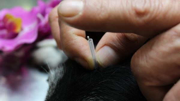 especialidad-acupuntura